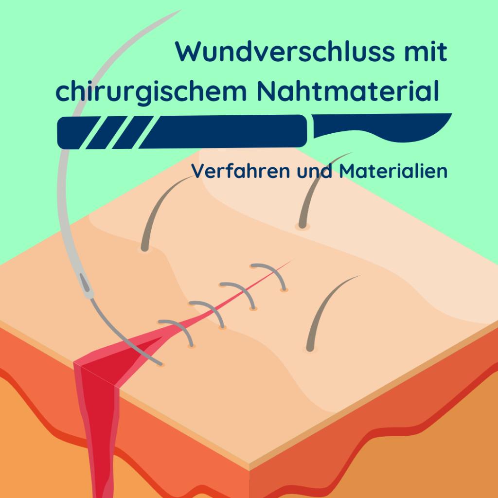 Abbildung über Wundverschlussverfahren mit chirurgischem Nahtmaterial.