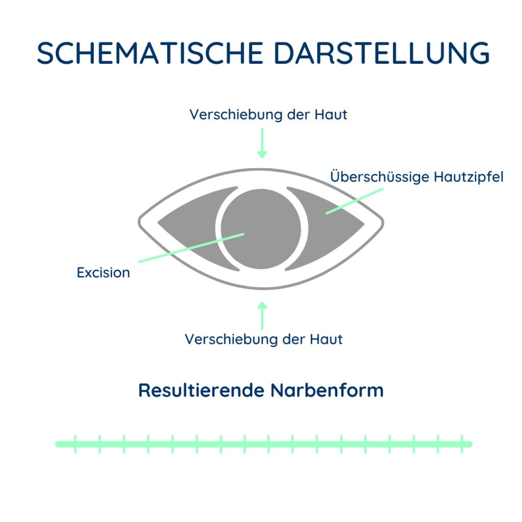 Abbildung zur schematischen Darstellung der Dehnungsplastik.