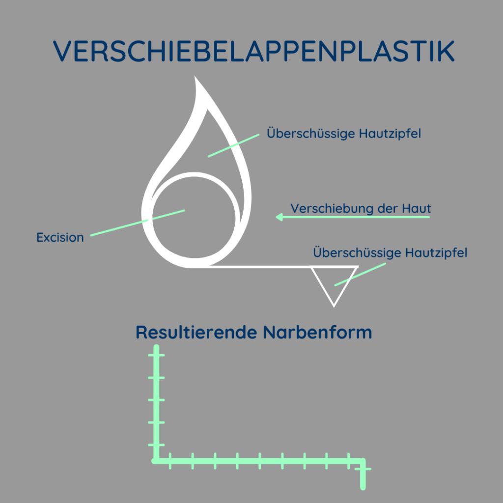 Abbildung zur schematischen Darstellung der Verschiebelappenplastik.